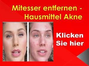Gelbstich Entfernen Hausmittel : mitesser entfernen hausmittel akne youtube ~ Lizthompson.info Haus und Dekorationen