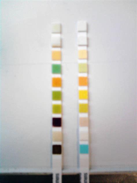 urine test strip wikiwand