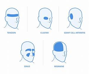 5 Types Of Headache And Their Locations