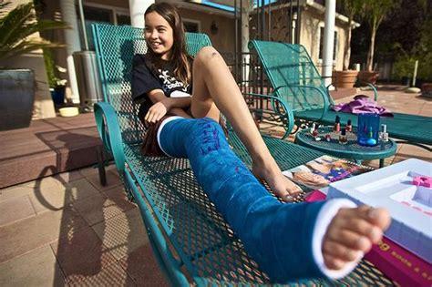 Ladies Broken Legs Cast Discover Spectacular Photography