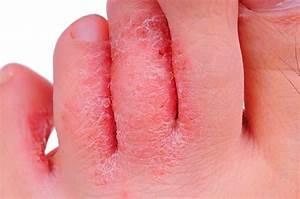 Лечение ногтей от грибка на ногах клиники санкт-петербурга