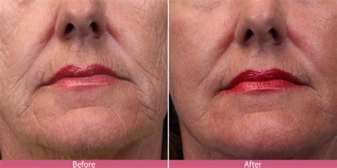 laser skin resurfacing seattle facelifts bellevue
