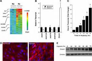 Induction Of Gravin By Hypoxia  A   Affymetrix Genechip Analysis And