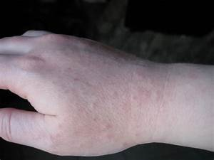 Itchy Rashes On Hands | www.pixshark.com - Images ...