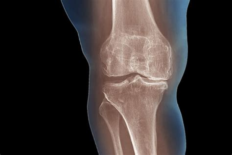 knee arthritis osteoarthritis ray does degenerative mri xray pain hip showing diagnose lose weight knees symptoms help possible getty treatment