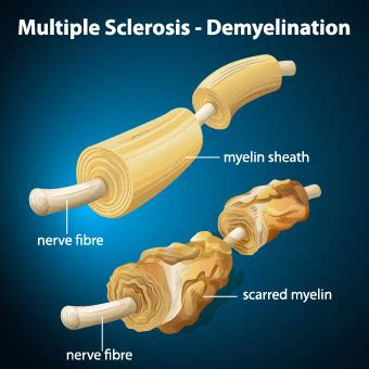 What Is Multiple Sclerosis (ms) Symptoms, Causes & Life. How Much Is A Gram Of Coke Kentucky Eye Care. Comparative Essay Rubric Web Designer Schools. Difference Between Term And Whole Life Insurance. Washington Online University. Community Chrysler Martinsville Indiana. Pharmacy School In Dallas Allens Tree Service. Criminal Lawyer Maryland Brothers Bbq Catering. Houston Transmission Repair Leap Auto Loans