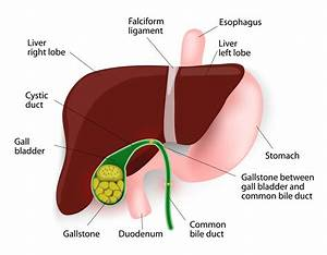 Gallstones  Treatments  Symptoms  And Causes