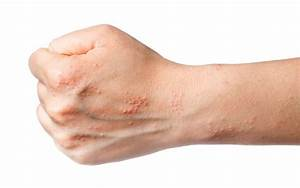 What Causes Eczema Blisters  Diagnosis  Symptoms And Treatment