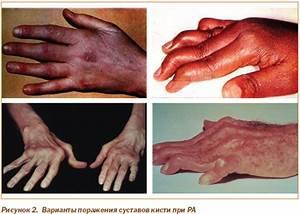 Лечение суставов причины возникновения боли в суставах профес лечение