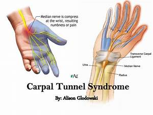 cubital tunnel syndrome pain relief