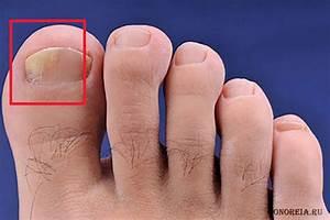 Какими препаратами можно вылечить грибок на ногтях