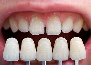 Dental Veneers – Know Procedure, Benefits and Precautions ...