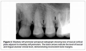 Different Radiographic Modalities Used for Detection of ...