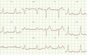 Wolff-parkinson-white Syndrome Ekg Examples