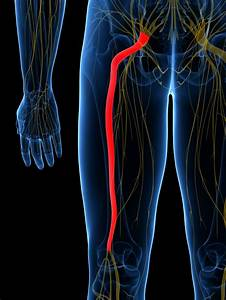 Sciatica  What It Is  Common Causes  And How To Fix It