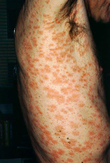 christmas tree rash pityriasis rosea pictures photos
