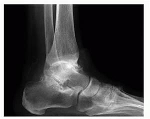 Osteoarthritis  Foot  Ankle Joints