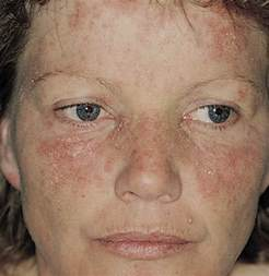 Lupus Rashes On Face