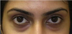 Black Under Eyes - Bing images