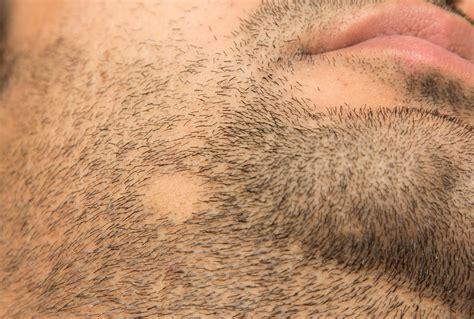 Mikropigmentacja Skóry Głowy - z czym to się je