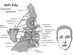 Bell Palsy; Bell's Palsy; Facial Neuropathy, Inflammatory, Acute ... Bell's Palsy