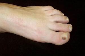 Subungual Melanoma - Pictures Treatment Symptoms Causes