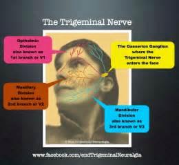 Nerve Trigeminal Neuralgia Treatment