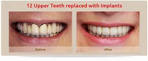 Your Dental Implant Centre