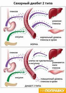 Лечение фасолью сахарный диабет 2 типа