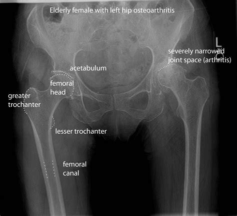 Hip X Images Xray Images Ap Pelvis Osteoarthritis Anatomy 素體