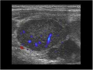 Ultrasound Neck Lymph Nodes