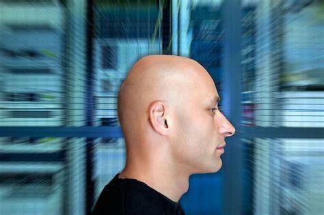 erblicher haarausfall wie hoch ist dein glatzen risiko