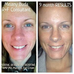 Flawless skin NOW after consistent and persistent us o ...