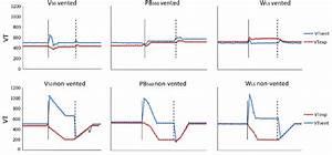 Trend Of Expiratory Tidal Volume  V Texp   And Tidal