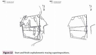 Cephalometric Tracing Treatment Assessment Superimpositions Finish Dental