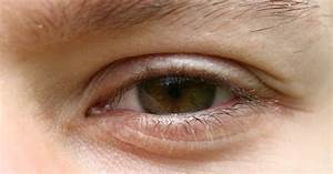 Scratched eye symptoms | eHow UK