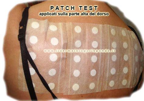 patch test sostanze le prove allergiche in dermatologia