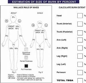 Burn Percentage Chart Rule Of 9 Burn Injuries Thoracic Key