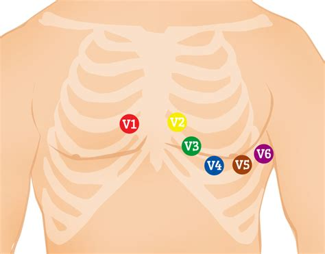 The 12 Lead Ecg Is A Standard Diagnostic Tool For Emts And