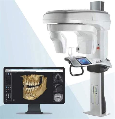 cbct imaging cone beam computed tomography webster tx
