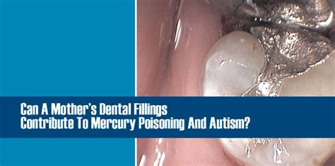 Can A Mother's Dental Fillings Cause Mercury Poisoning And