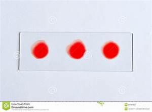 E Herd Test : test de groupe sanguin photographie stock libre de droits image 21141637 ~ Watch28wear.com Haus und Dekorationen