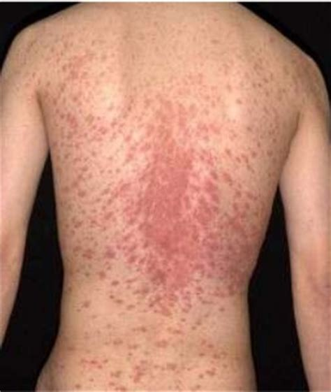 curtain shop facts about this skin disease pityriasis rosea