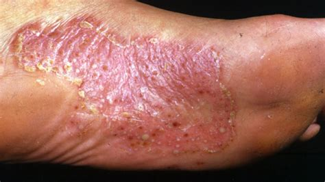 Palmar- plantar psoriasis - treatment and photo disease