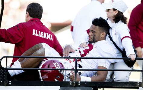 alabama  mississippi state  victory proves costly