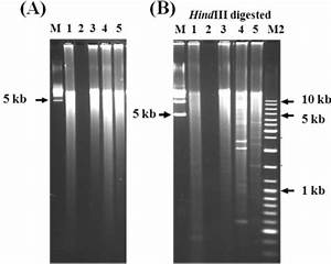 DNA gel pictures. (A) Genomic DNA amplification by roll ...