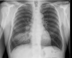 Pneumonia  U2013 Hospital Acquired Pneumonia Versus Community