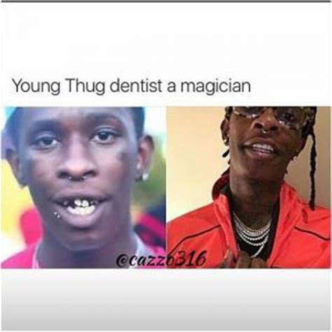 Young Thug Memes - dentist jokes kappit
