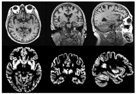 brain sciences  full text multi view based multi
