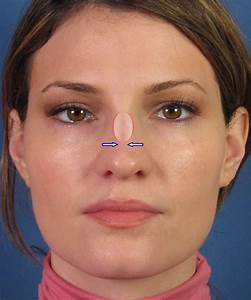Healing After Closed Rhinoplasty  Nosejob  In San Diego By Nose Specialist Dr  John Hilinski